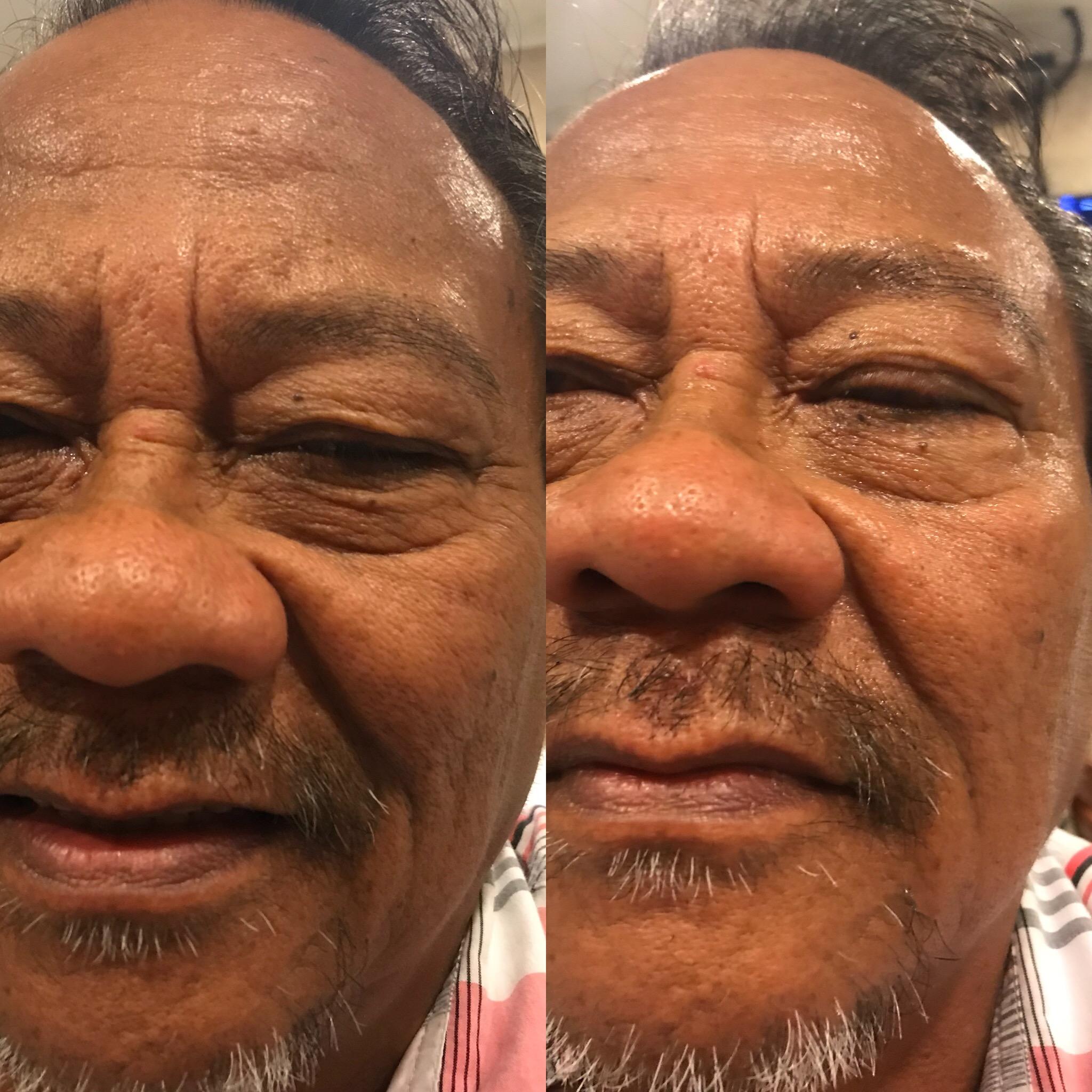 Swisderm Sagging Skin Testimonials